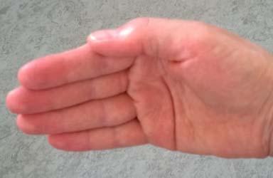 Horn Handinnenseite